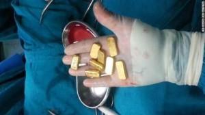 emas perut
