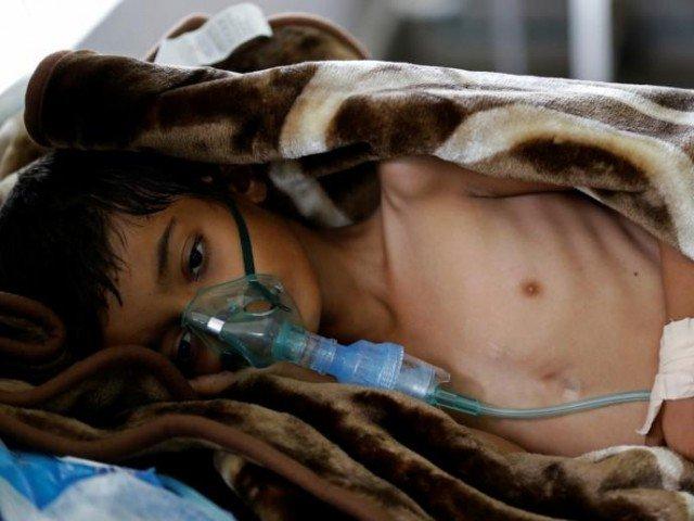 Akhir tahun Ini Lebih Dari 50.000 Anak di Yaman Terancam Meninggal Dunia