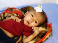 PBB: 5.000 Anak Di Yaman Meninggal dan Terluka Sementara 400.000 Lainnya Alami Malnutrisi