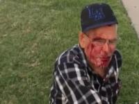 Aksi Rasis, Pria Berusia 92 Tahun Dipukuli dengan Bata di AS